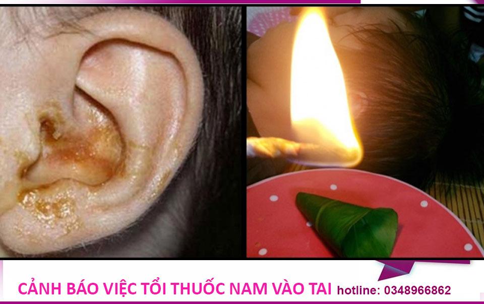 Cảnh báo con có thể bị điếc vì thổi thuốc nam vào tai