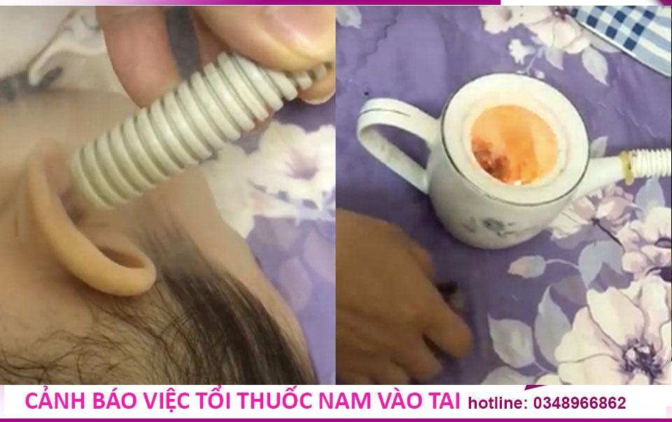 Thổi thuốc nam vào tai có thể gây hại cho con