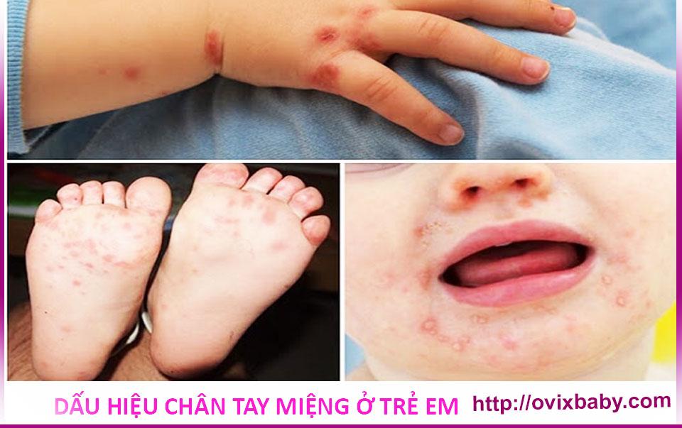 Dấu hiệu chân tay miệng ở trẻ em và cách phòng tránh