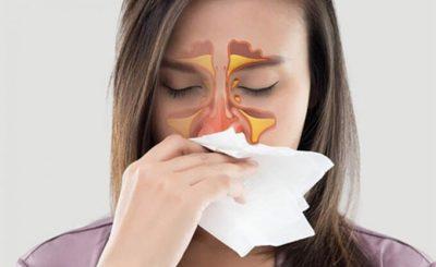 Viêm mũi xoang kèm theo viêm mũi dị ứng