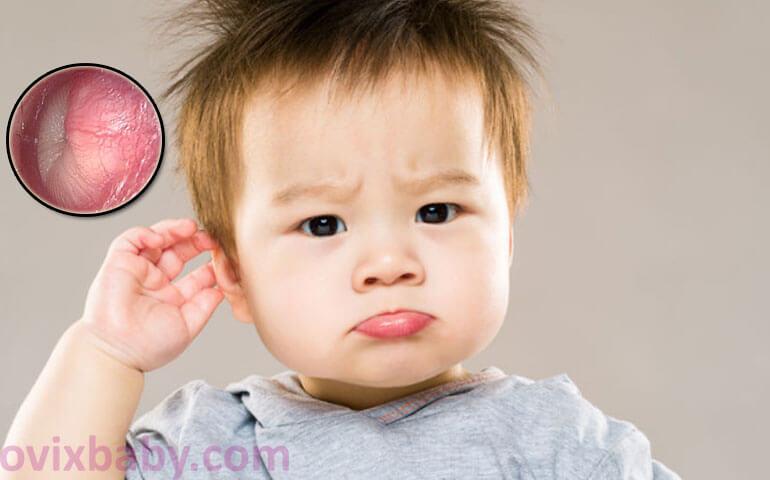 Viêm tai giữa ở trẻ nhỏ