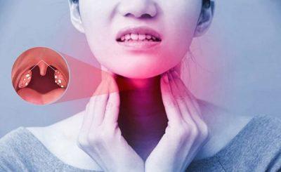 Viêm họng mãn tính điều trị và cách phòng bệnh