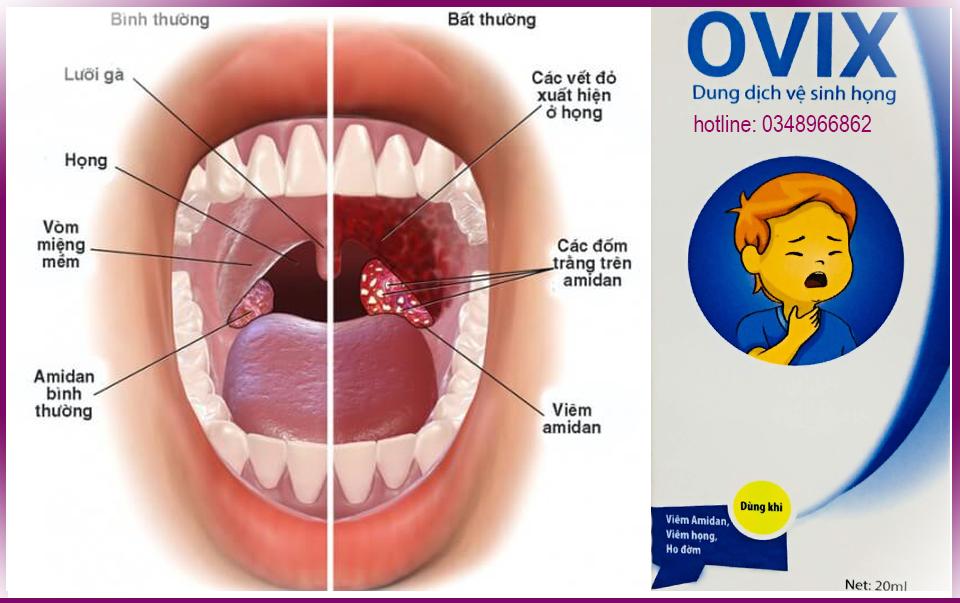 Viêm amidan nhận biết và cách điều trị