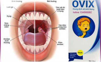 Xịt họng Ovix giải quyết các vấn đề về họng cho trẻ