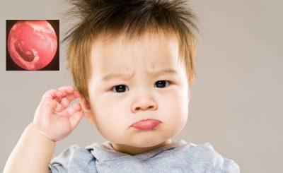 Nấm tai dấu hiệu nhận biết và cách điều trị